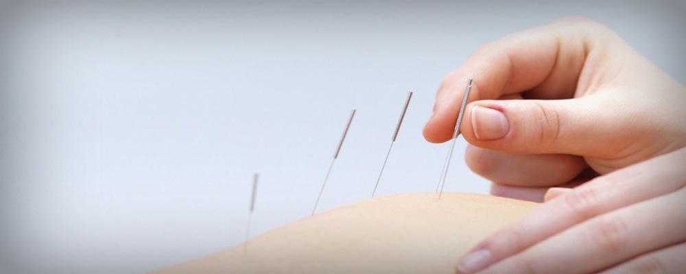 acupuncture-12